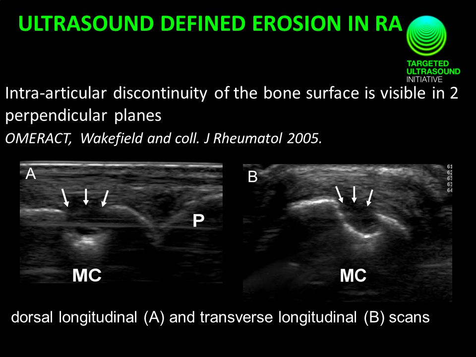 Intra-articular discontinuity of the bone surface is visible in 2 perpendicular planes OMERACT, Wakefield and coll. J Rheumatol 2005. ULTRASOUND DEFIN