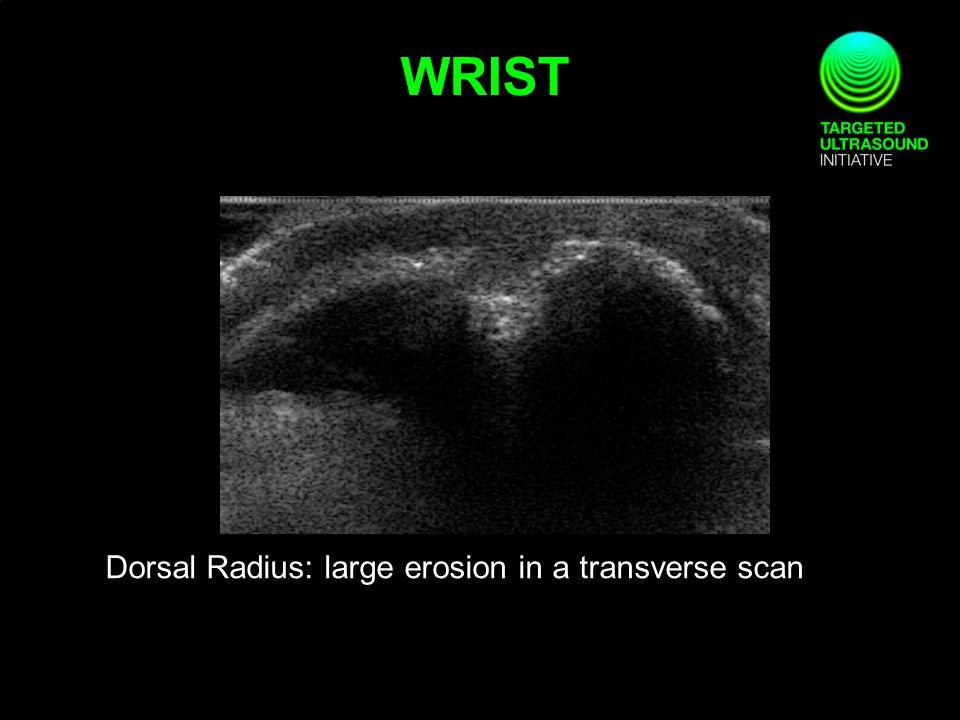 Dorsal Radius: large erosion in a transverse scan WRIST
