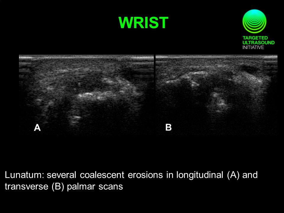 Lunatum: several coalescent erosions in longitudinal (A) and transverse (B) palmar scans A B