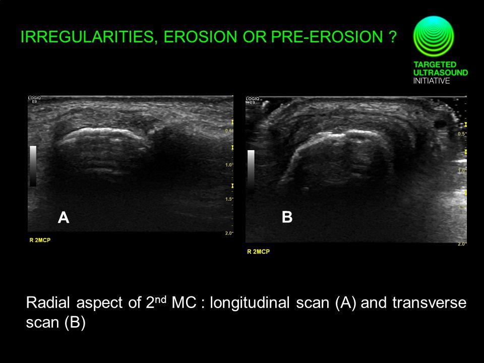 IRREGULARITIES, EROSION OR PRE-EROSION ? Radial aspect of 2 nd MC : longitudinal scan (A) and transverse scan (B) A B