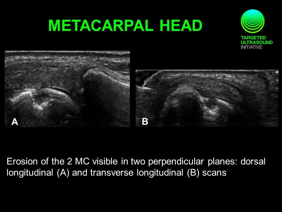 Erosion of the 2 MC visible in two perpendicular planes: dorsal longitudinal (A) and transverse longitudinal (B) scans A B METACARPAL HEAD