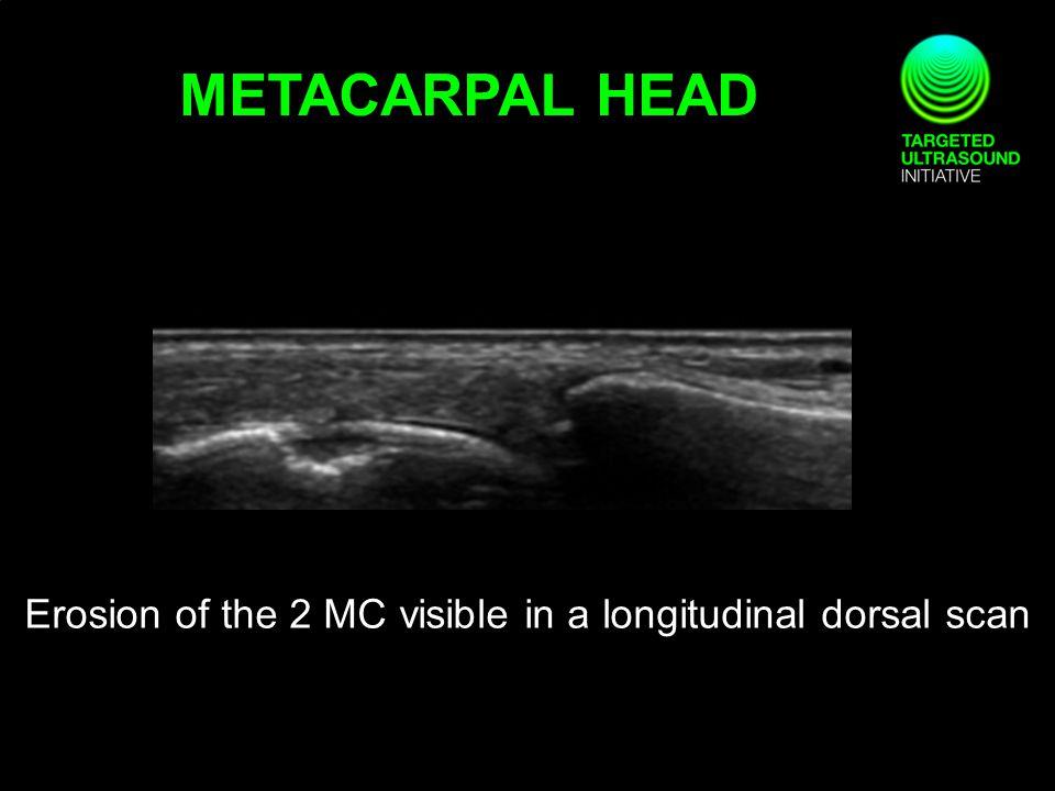Erosion of the 2 MC visible in a longitudinal dorsal scan METACARPAL HEAD
