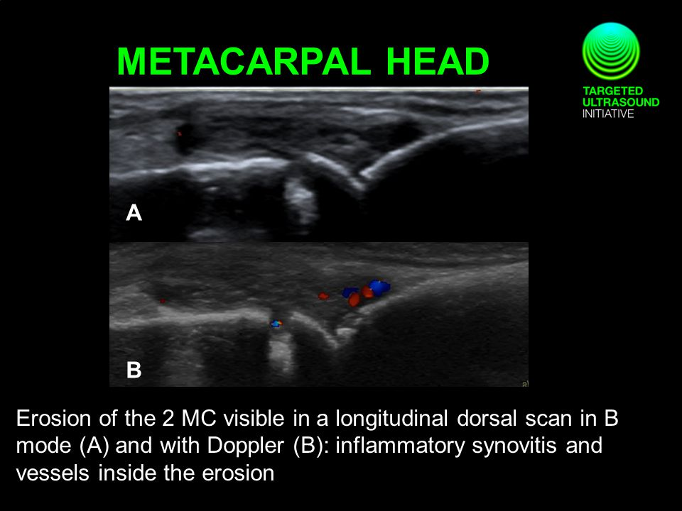 METACARPAL HEAD Erosion of the 2 MC visible in a longitudinal dorsal scan in B mode (A) and with Doppler (B): inflammatory synovitis and vessels inside the erosion A B