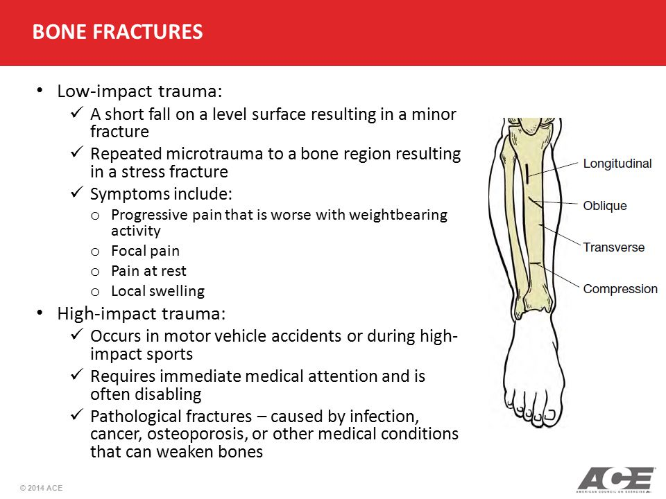 © 2014 ACE BONE FRACTURES Low-impact trauma: A short fall on a level surface resulting in a minor fracture Repeated microtrauma to a bone region resul