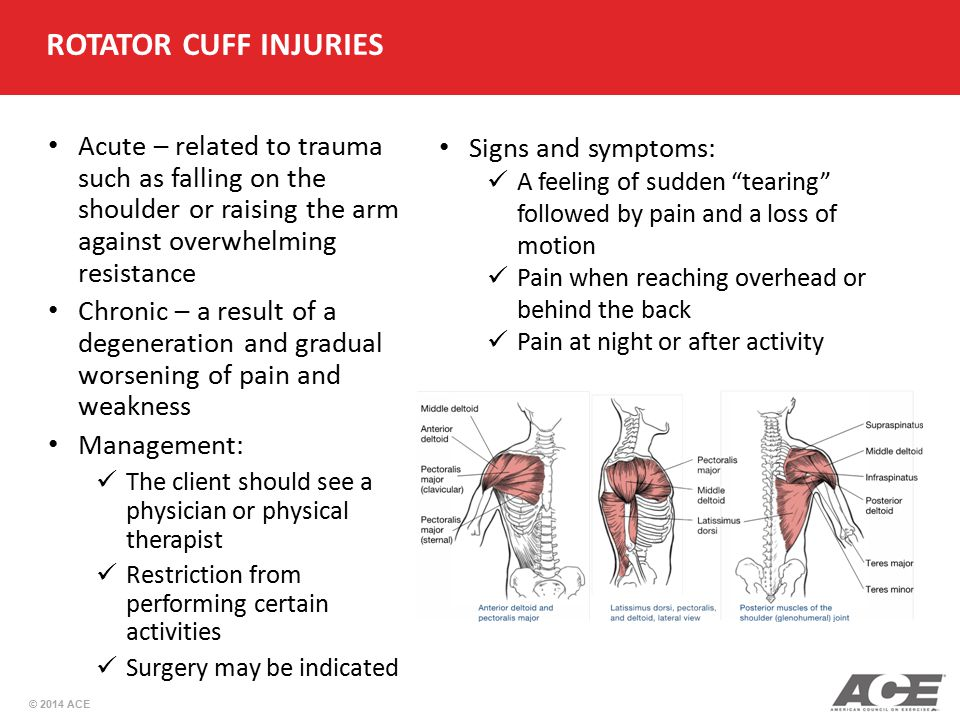 © 2014 ACE ROTATOR CUFF INJURIES Acute – related to trauma such as falling on the shoulder or raising the arm against overwhelming resistance Chronic