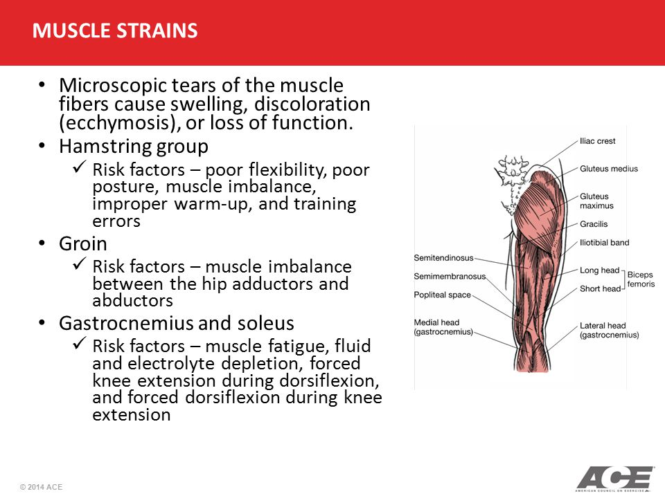 © 2014 ACE Microscopic tears of the muscle fibers cause swelling, discoloration (ecchymosis), or loss of function. Hamstring group Risk factors – poor