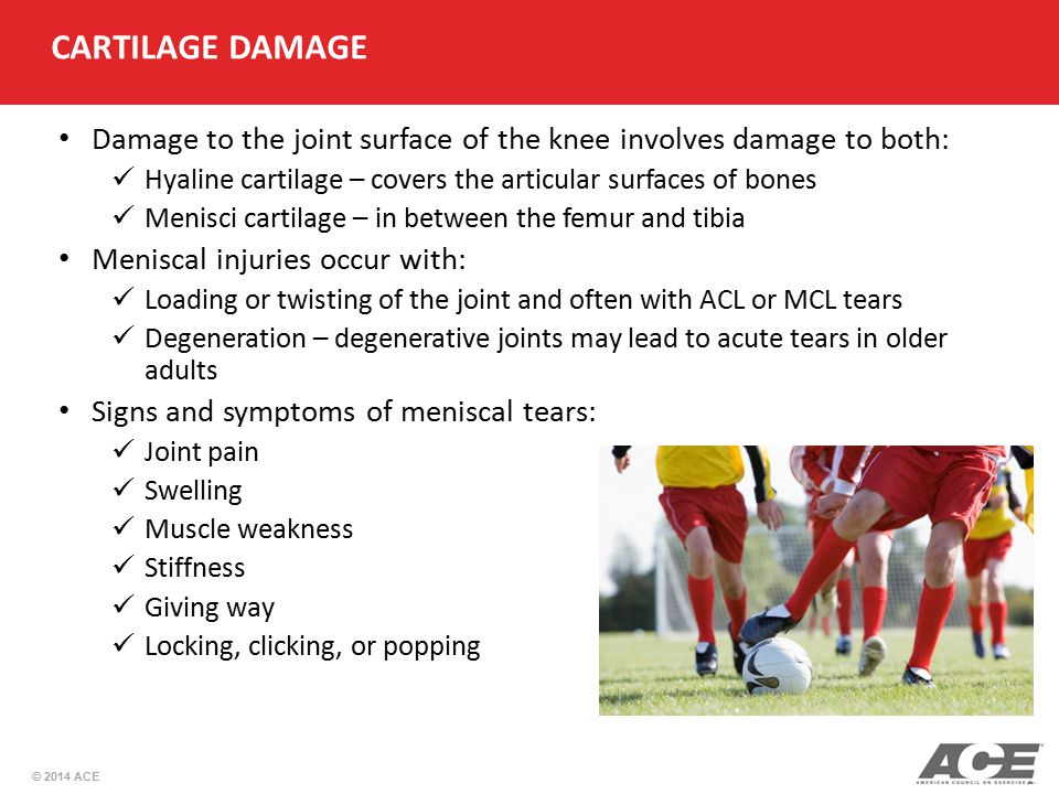 © 2014 ACE CARTILAGE DAMAGE Damage to the joint surface of the knee involves damage to both: Hyaline cartilage – covers the articular surfaces of bone