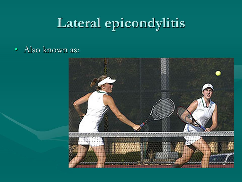 Lateral epicondylitis Also known as:Also known as: