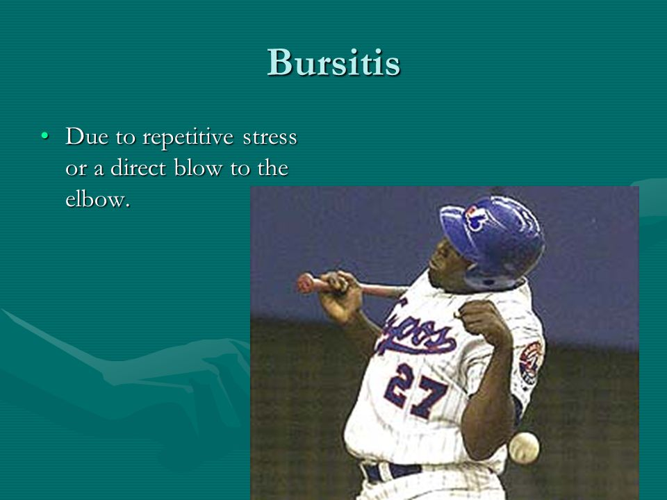 Bursitis Due to repetitive stress or a direct blow to the elbow.Due to repetitive stress or a direct blow to the elbow.