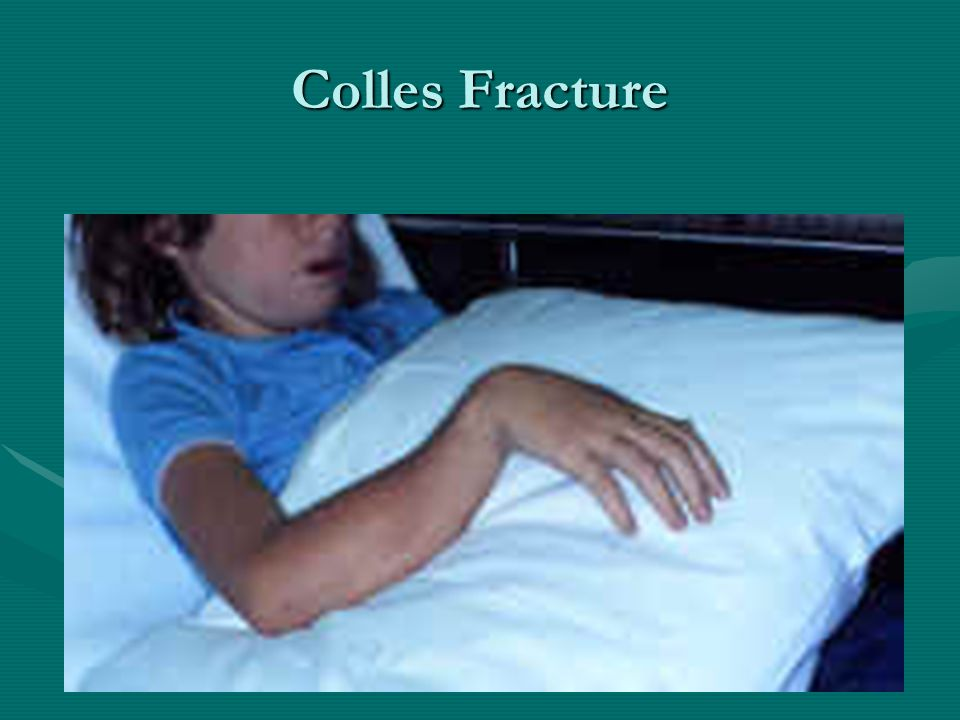Colles Fracture