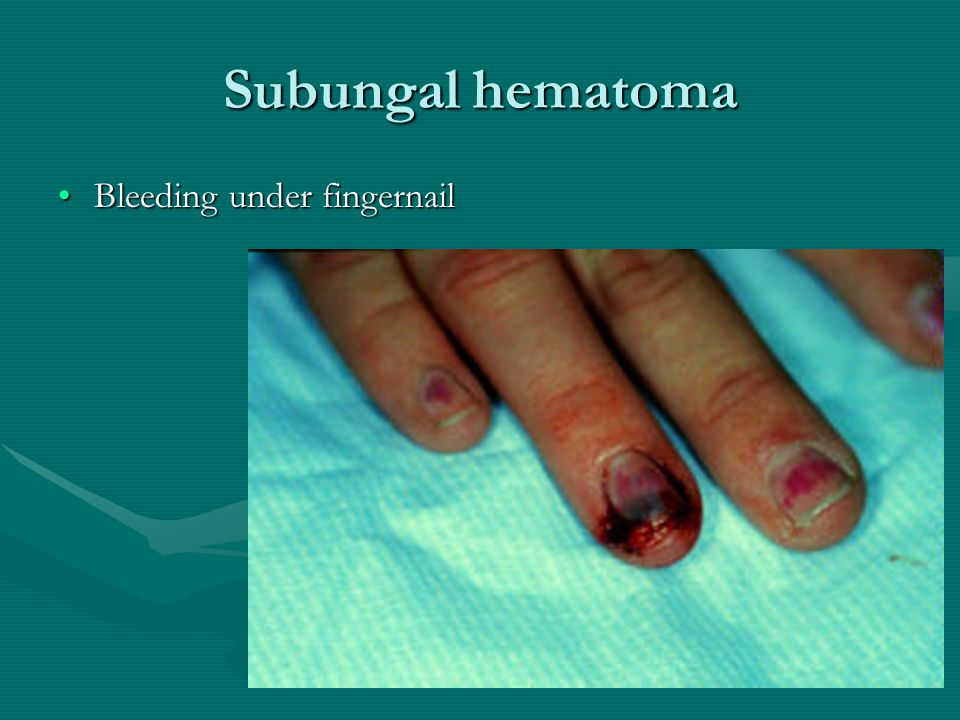 Subungal hematoma Bleeding under fingernailBleeding under fingernail