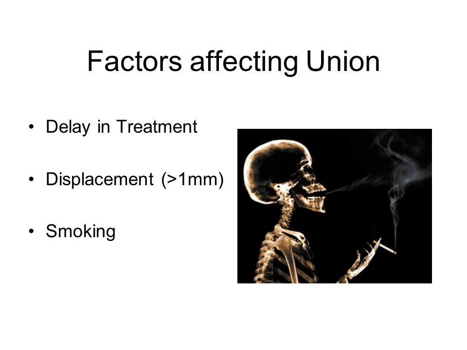 Factors affecting Union Delay in Treatment Displacement (>1mm) Smoking
