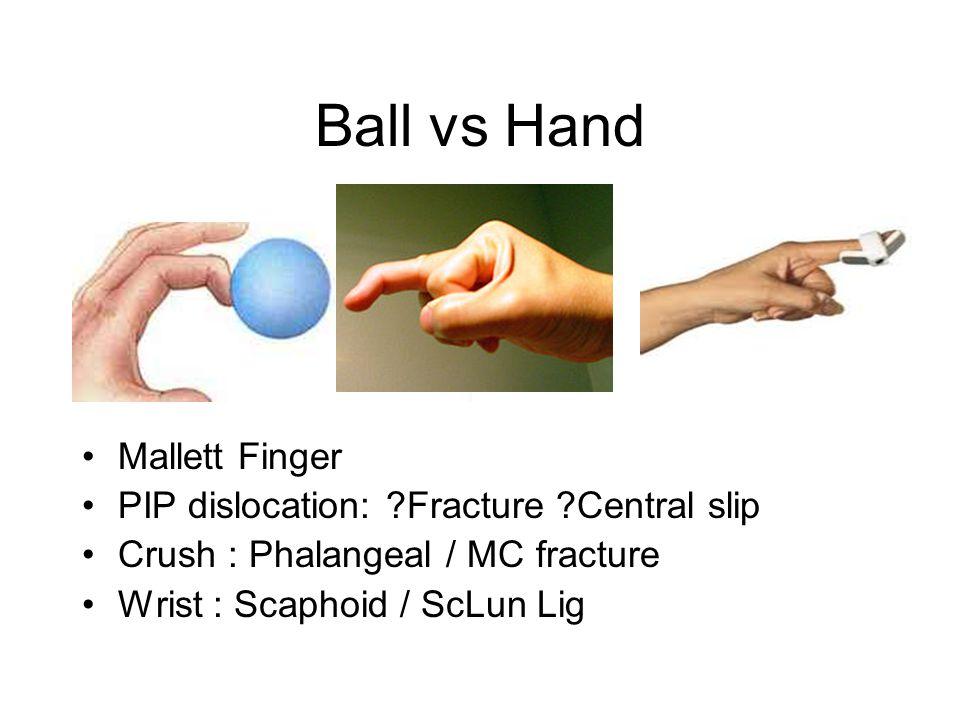 Ball vs Hand Mallett Finger PIP dislocation: ?Fracture ?Central slip Crush : Phalangeal / MC fracture Wrist : Scaphoid / ScLun Lig