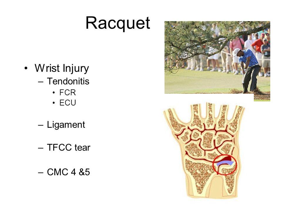 Racquet Wrist Injury –Tendonitis FCR ECU –Ligament –TFCC tear –CMC 4 &5