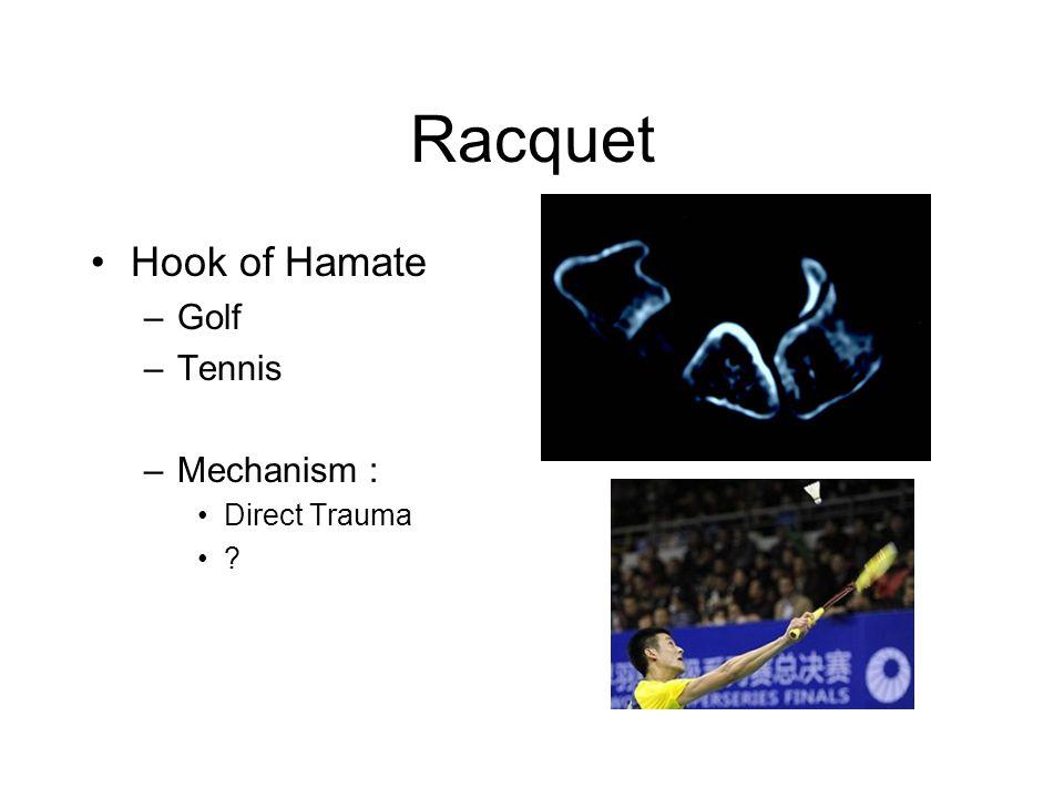 Racquet Hook of Hamate –Golf –Tennis –Mechanism : Direct Trauma