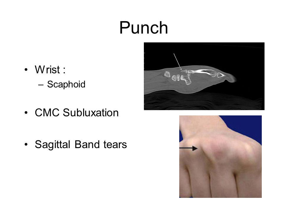 Punch Wrist : –Scaphoid CMC Subluxation Sagittal Band tears