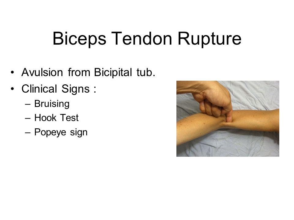 Biceps Tendon Rupture Avulsion from Bicipital tub.