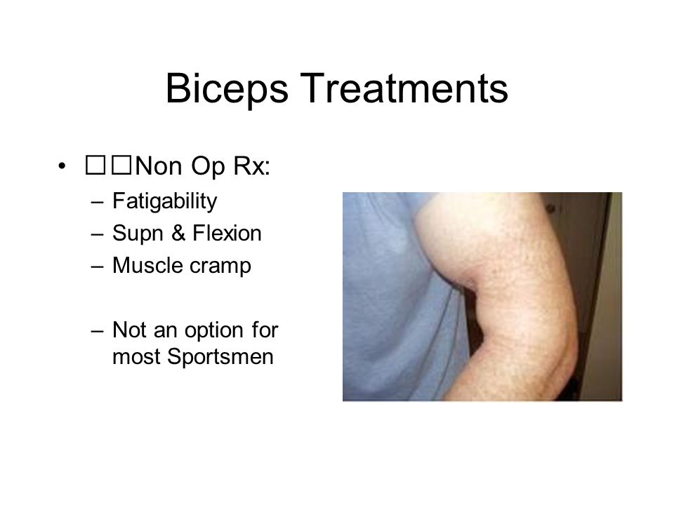 Biceps Treatments Non Op Rx: –Fatigability –Supn & Flexion –Muscle cramp –Not an option for most Sportsmen