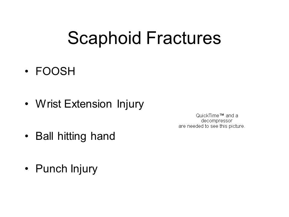 Scaphoid Fractures FOOSH Wrist Extension Injury Ball hitting hand Punch Injury
