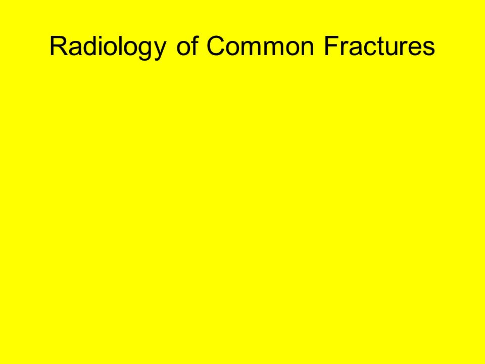 Radiology of Common Fractures