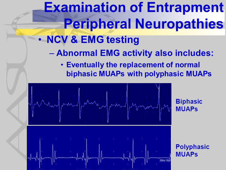 Examination of Entrapment Peripheral Neuropathies NCV & EMG testing –Abnormal EMG activity also includes: Eventually the replacement of normal biphasic MUAPs with polyphasic MUAPs Biphasic MUAPs Polyphasic MUAPs