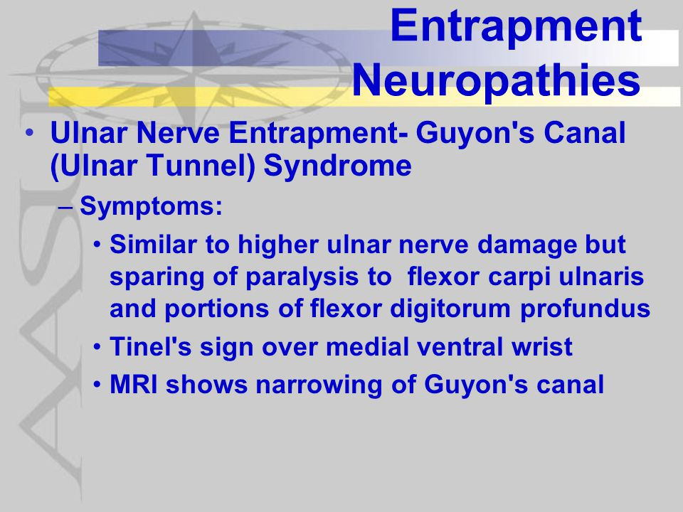 Entrapment Neuropathies Ulnar Nerve Entrapment- Guyon s Canal (Ulnar Tunnel) Syndrome –Symptoms: Similar to higher ulnar nerve damage but sparing of paralysis to flexor carpi ulnaris and portions of flexor digitorum profundus Tinel s sign over medial ventral wrist MRI shows narrowing of Guyon s canal