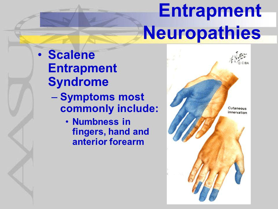 Entrapment Neuropathies Scalene Entrapment Syndrome –Symptoms most commonly include: Numbness in fingers, hand and anterior forearm
