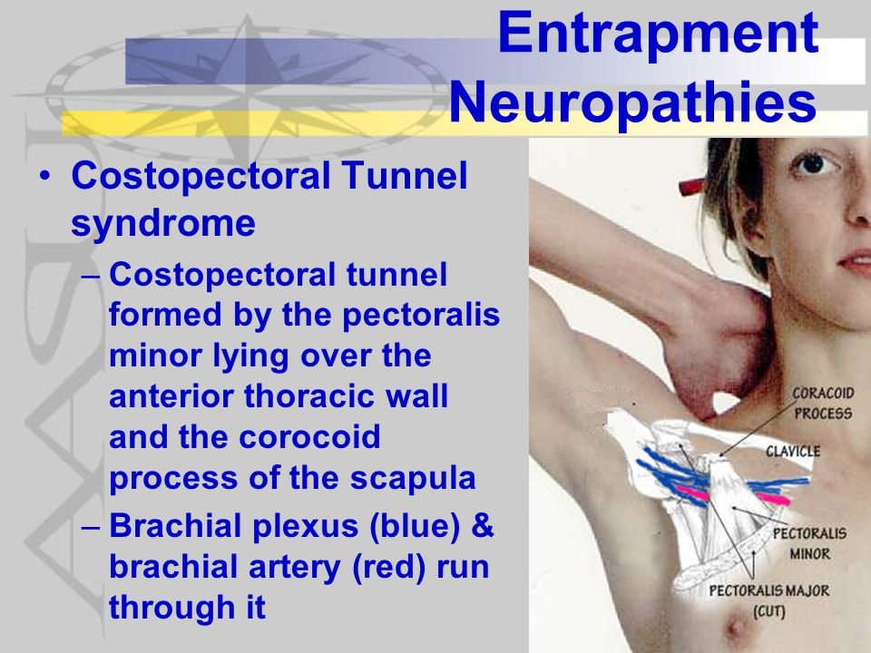 Entrapment Neuropathies Costopectoral Tunnel syndrome –Costopectoral tunnel formed by the pectoralis minor lying over the anterior thoracic wall and the corocoid process of the scapula –Brachial plexus (blue) & brachial artery (red) run through it