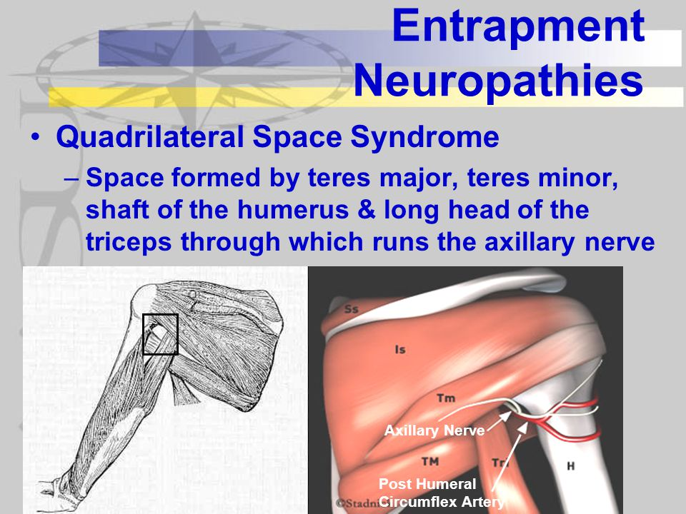 Entrapment Neuropathies Quadrilateral Space Syndrome –Space formed by teres major, teres minor, shaft of the humerus & long head of the triceps through which runs the axillary nerve Axillary Nerve Post Humeral Circumflex Artery