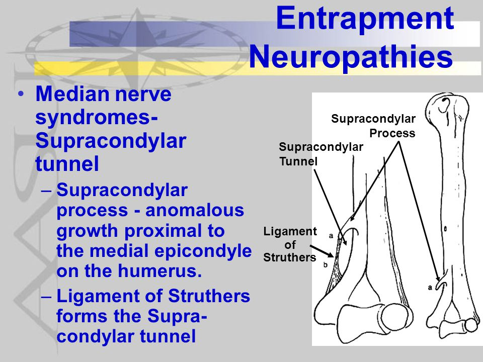 Entrapment Neuropathies Median nerve syndromes- Supracondylar tunnel –Supracondylar process - anomalous growth proximal to the medial epicondyle on the humerus.
