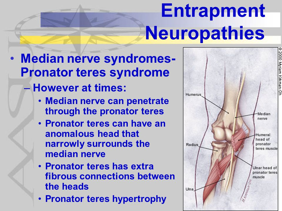 Entrapment Neuropathies Median nerve syndromes- Pronator teres syndrome –However at times: Median nerve can penetrate through the pronator teres Pronator teres can have an anomalous head that narrowly surrounds the median nerve Pronator teres has extra fibrous connections between the heads Pronator teres hypertrophy