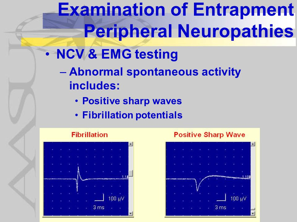 Examination of Entrapment Peripheral Neuropathies NCV & EMG testing –Abnormal spontaneous activity includes: Positive sharp waves Fibrillation potentials