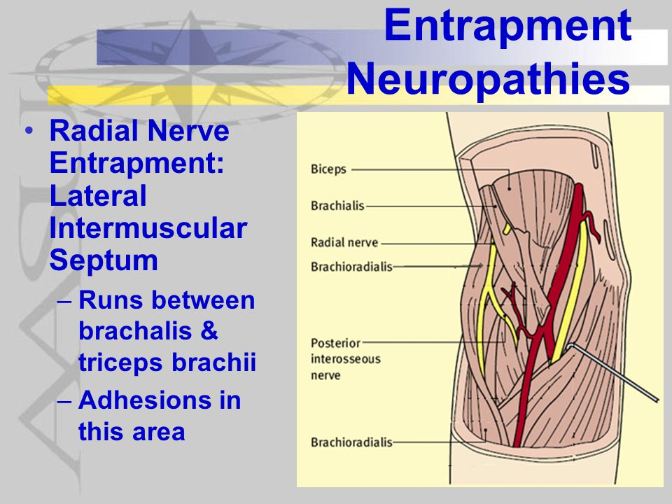 Entrapment Neuropathies Radial Nerve Entrapment: Lateral Intermuscular Septum –Runs between brachalis & triceps brachii –Adhesions in this area