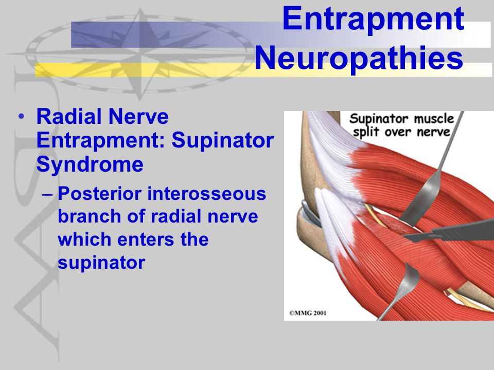Entrapment Neuropathies Radial Nerve Entrapment: Supinator Syndrome –Posterior interosseous branch of radial nerve which enters the supinator
