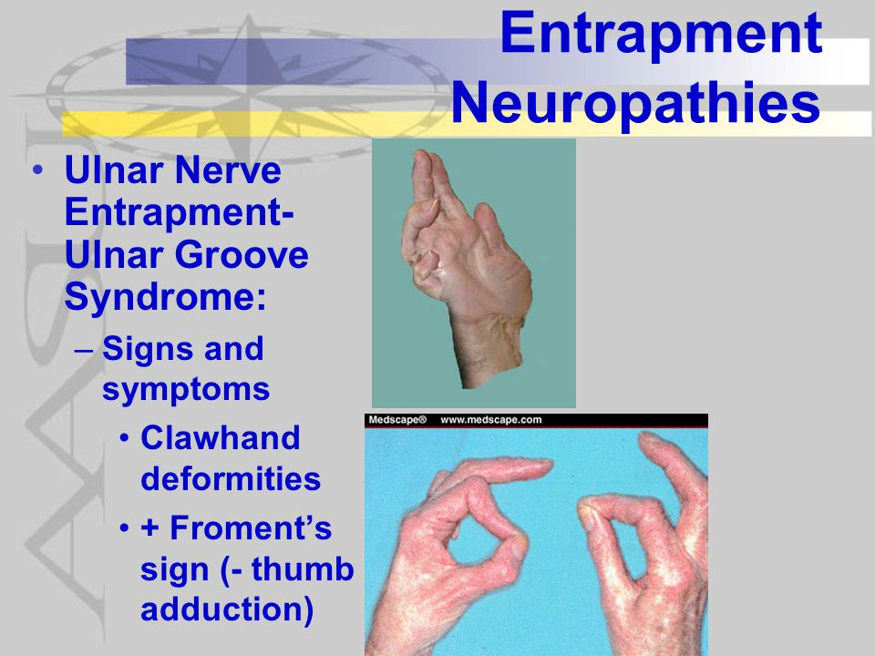 Entrapment Neuropathies Ulnar Nerve Entrapment- Ulnar Groove Syndrome: –Signs and symptoms Clawhand deformities + Froment's sign (- thumb adduction)