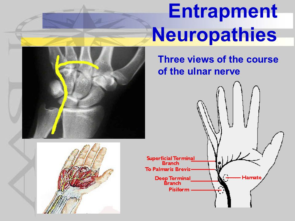 Entrapment Neuropathies Three views of the course of the ulnar nerve