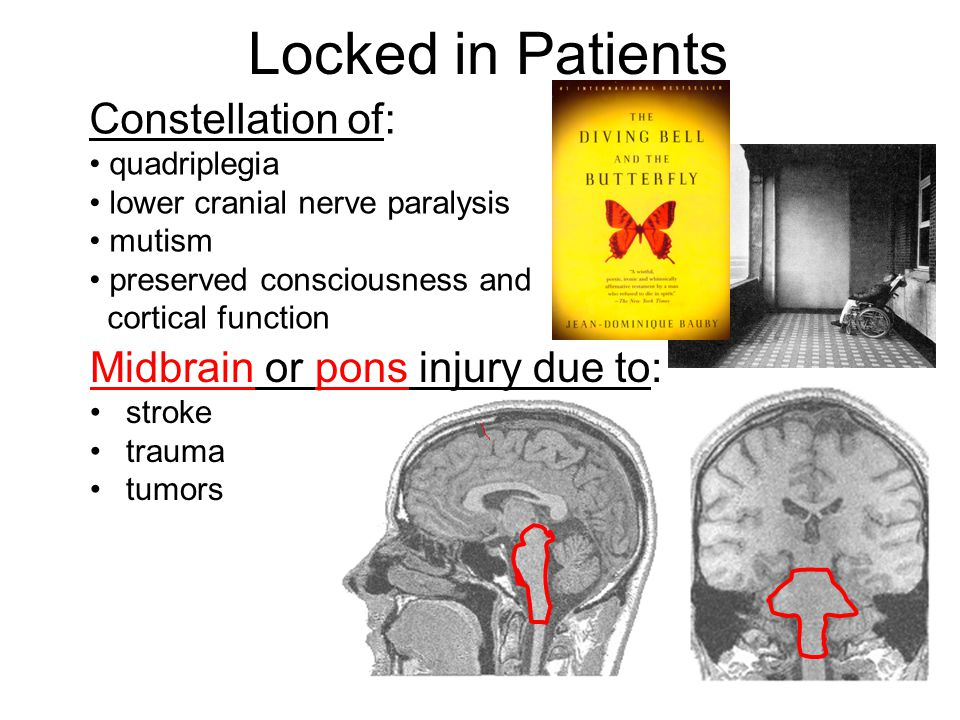 Locked in Patients Constellation of: quadriplegia lower cranial nerve paralysis mutism preserved consciousness and cortical function Midbrain or pons