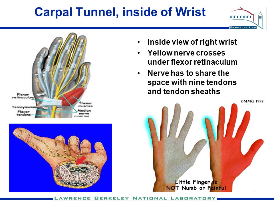 Carpal Tunnel, inside of Wrist Inside view of right wrist Yellow nerve crosses under flexor retinaculum Nerve has to share the space with nine tendons and tendon sheaths
