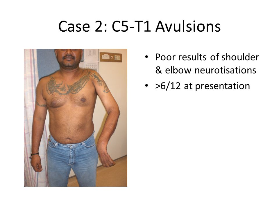 Case 2: C5-T1 Avulsions Poor results of shoulder & elbow neurotisations >6/12 at presentation