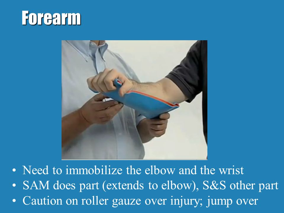 Forearm Need to immobilize the elbow and the wrist SAM does part (extends to elbow), S&S other part Caution on roller gauze over injury; jump over