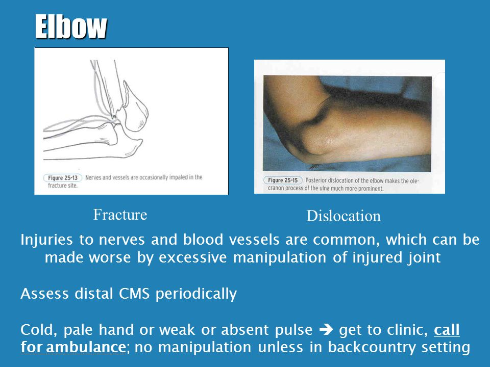 Elbow Dislocation Fracture Injuries to nerves and blood vessels are common, which can be made worse by excessive manipulation of injured joint Assess distal CMS periodically Cold, pale hand or weak or absent pulse  get to clinic, call for ambulance; no manipulation unless in backcountry setting
