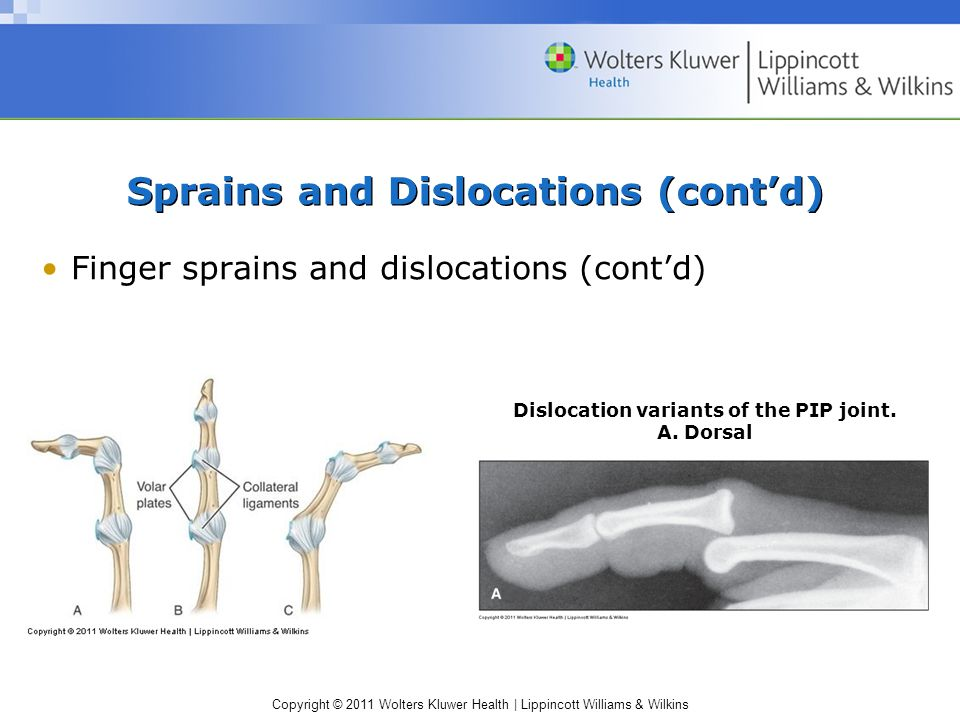 Copyright © 2011 Wolters Kluwer Health | Lippincott Williams & Wilkins Sprains and Dislocations (cont'd) Finger sprains and dislocations (cont'd) Dislocation variants of the PIP joint.