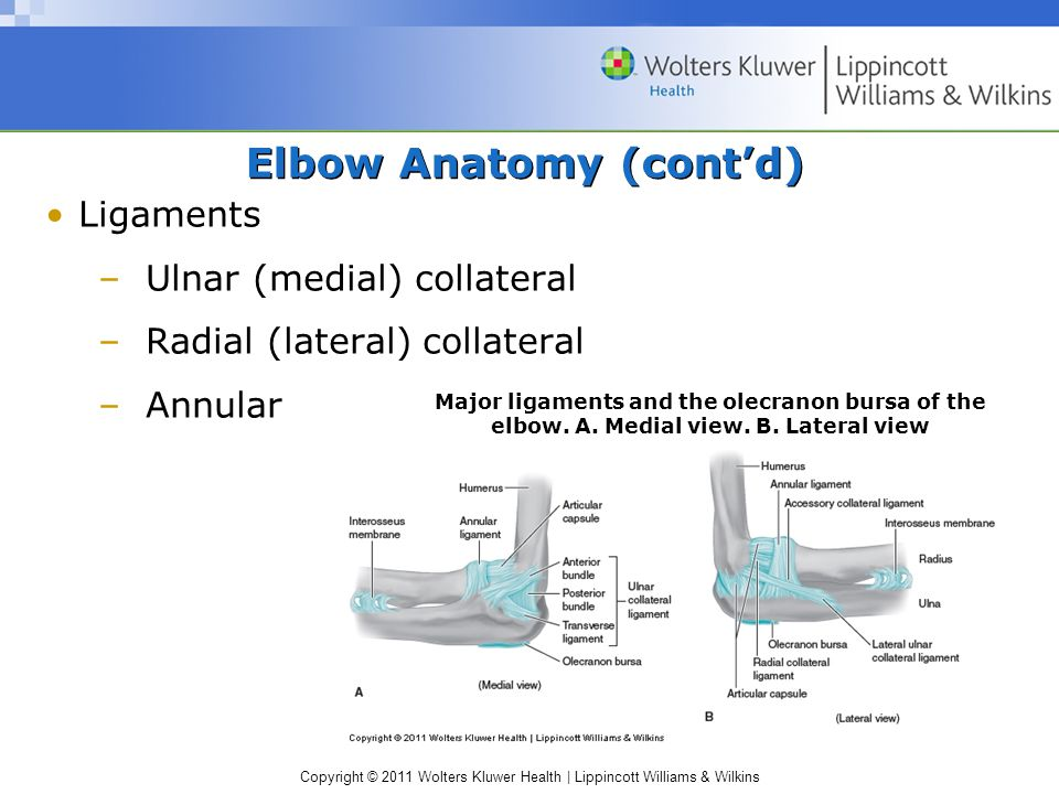 Copyright © 2011 Wolters Kluwer Health | Lippincott Williams & Wilkins Contusions Arm and forearm vulnerable S&S –Rapid swelling – can limit ROM Chronic blows –Development of ectopic bone Myositis ossificans – brachialis belly; proximal deltoid insertion Tackler's exostosis
