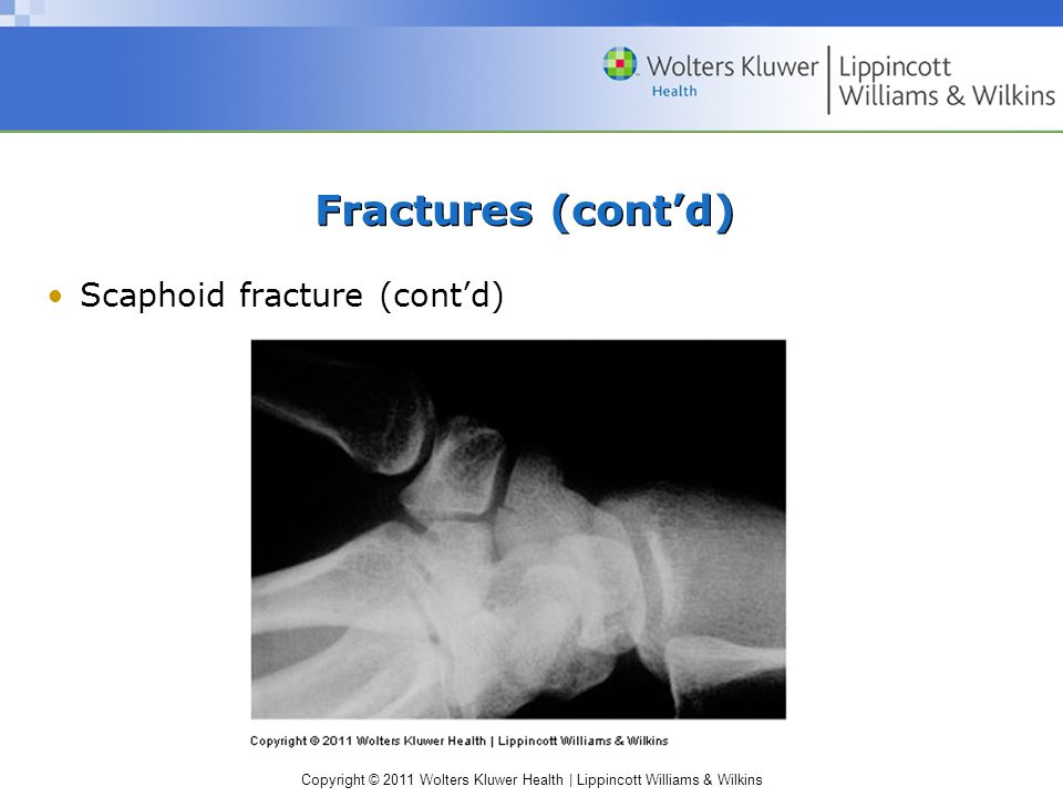 Copyright © 2011 Wolters Kluwer Health | Lippincott Williams & Wilkins Fractures (cont'd) Scaphoid fracture (cont'd)