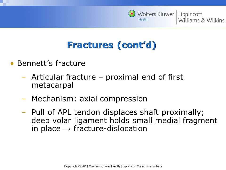 Copyright © 2011 Wolters Kluwer Health | Lippincott Williams & Wilkins Fractures (cont'd) Bennett's fracture –Articular fracture – proximal end of fir