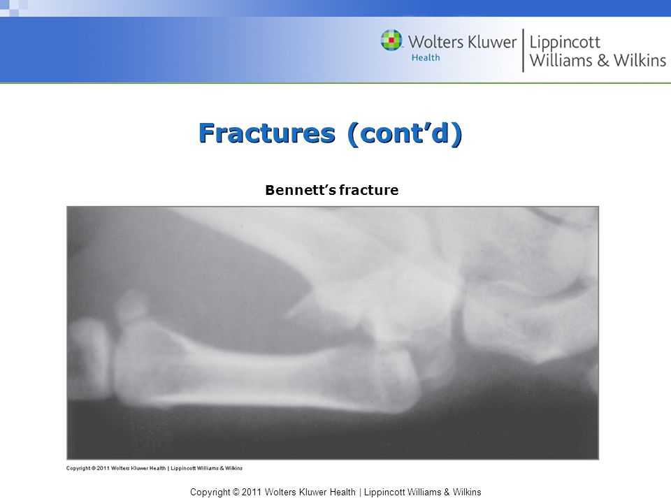 Copyright © 2011 Wolters Kluwer Health | Lippincott Williams & Wilkins Fractures (cont'd) Bennett's fracture