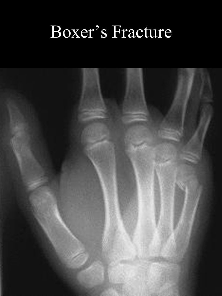 Miscellaneous Triangular fibrocartilage Ganglion cyst Gamekeeper's thumb Boxer's Fracture