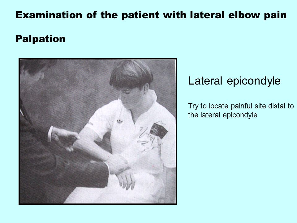 Examination of the patient with lateral elbow pain Palpation Lateral epicondyle Try to locate painful site distal to the lateral epicondyle