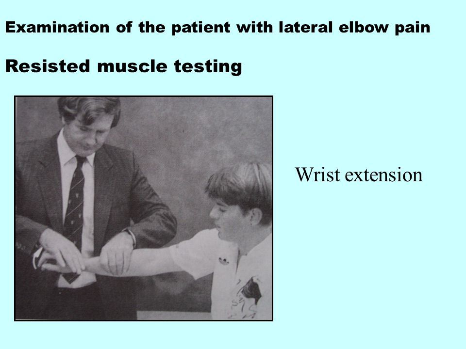 Examination of the patient with lateral elbow pain Resisted muscle testing Wrist extension