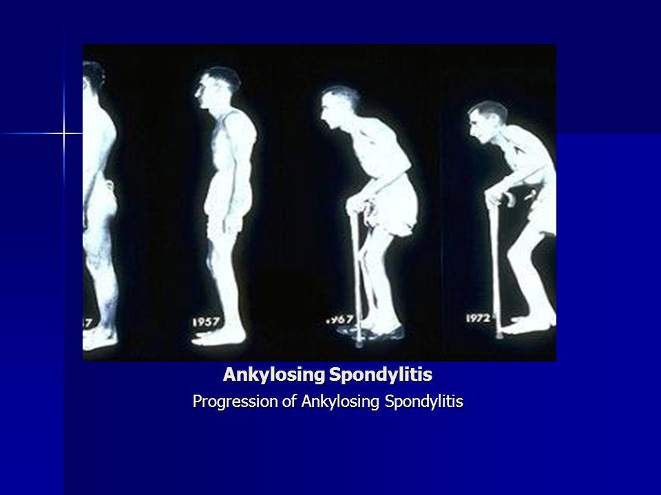 Ankylosing Spondylitis Progression of Ankylosing Spondylitis